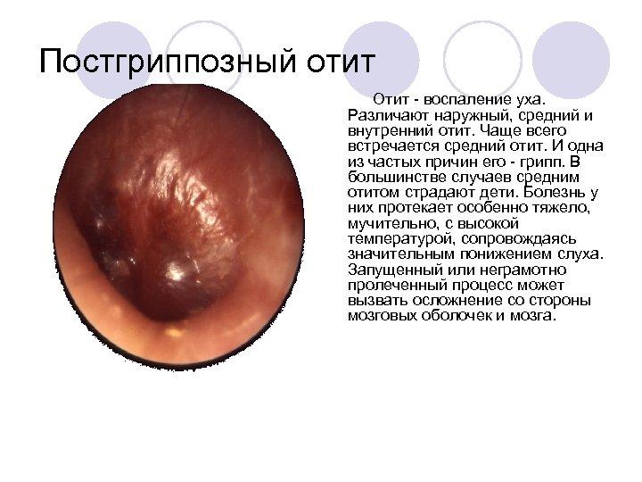 Постгриппозный отит Отит воспаление уха. Различают наружный, средний и внутренний отит. Чаще всего встречается