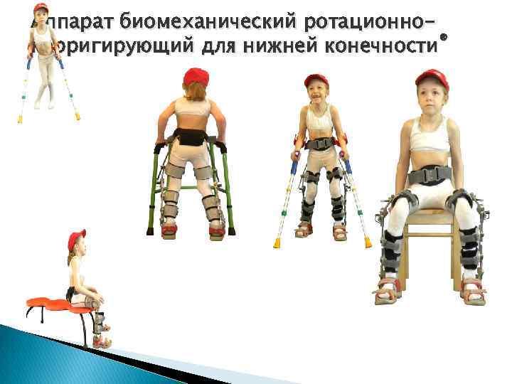Аппарат биомеханический ротационнокорригирующий для нижней конечности®