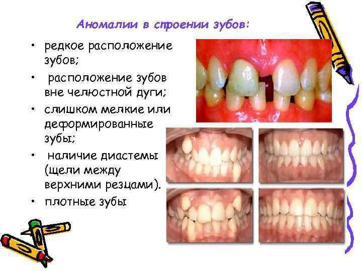 Аномалии в строении зубов: • редкое расположение зубов; • расположение зубов вне челюстной дуги;