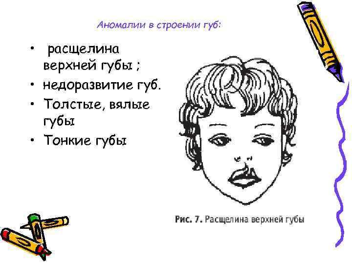 Аномалии в строении губ: • расщелина верхней губы ; • недоразвитие губ. • Толстые,