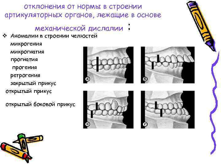 отклонения от нормы в строении артикуляторных органов, лежащие в основе механической дислалии v Аномалии