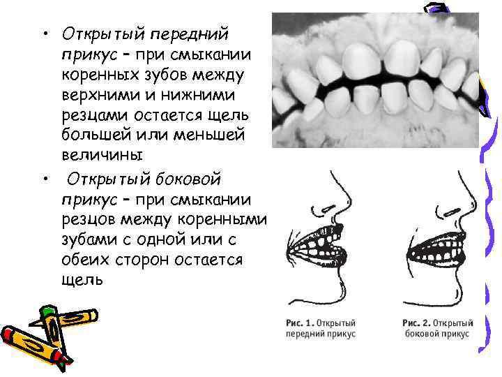 • Открытый передний прикус – при смыкании коренных зубов между верхними и нижними