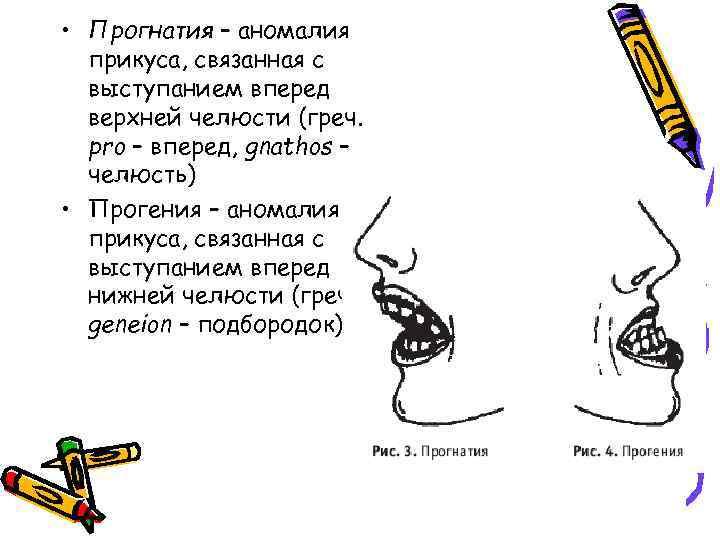 • Прогнатия – аномалия прикуса, связанная с выступанием вперед верхней челюсти (греч. pro