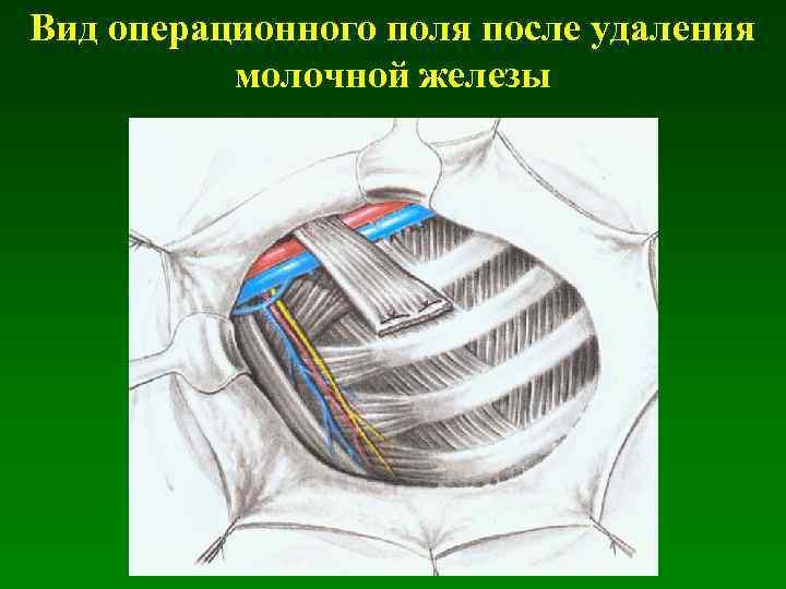 Вид операционного поля после удаления молочной железы