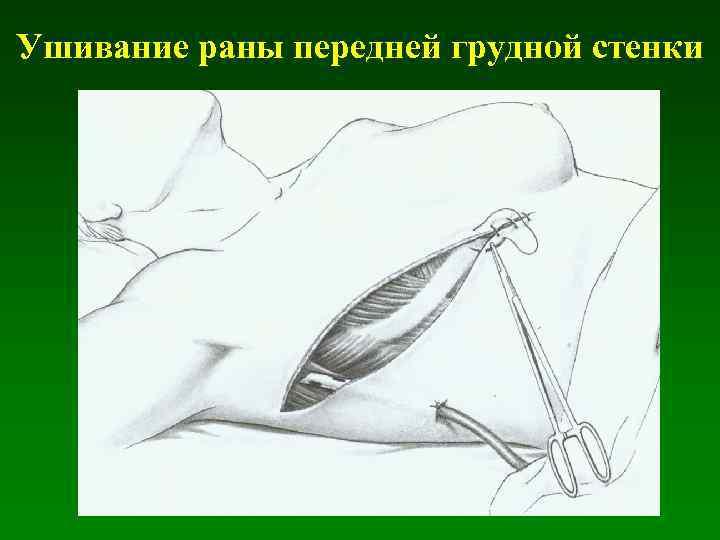 Ушивание раны передней грудной стенки