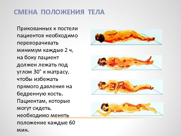 СМЕНА ПОЛОЖЕНИЯ ТЕЛА Прикованных к постели пациентов необходимо переворачивать минимум каждые 2 ч, на