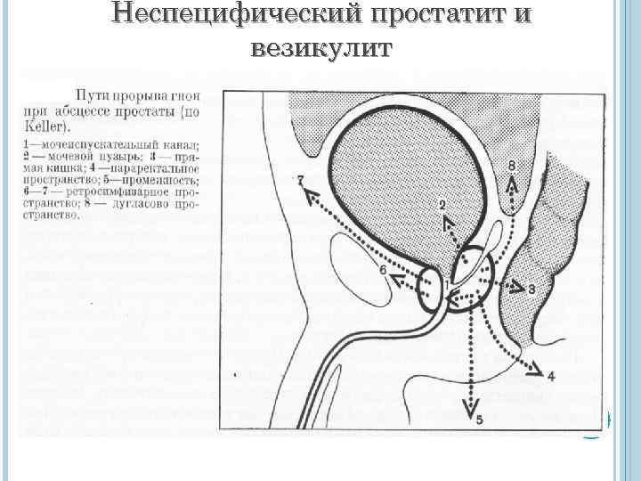 Неспецифическим простатитом эффективное народное средство лечения простатита