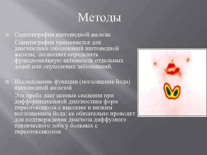 Методы Сцинтиграфия щитовидной железы Сцинтиграфия применяется для диагностики заболеваний щитовидной железы, позволяет определить функциональную