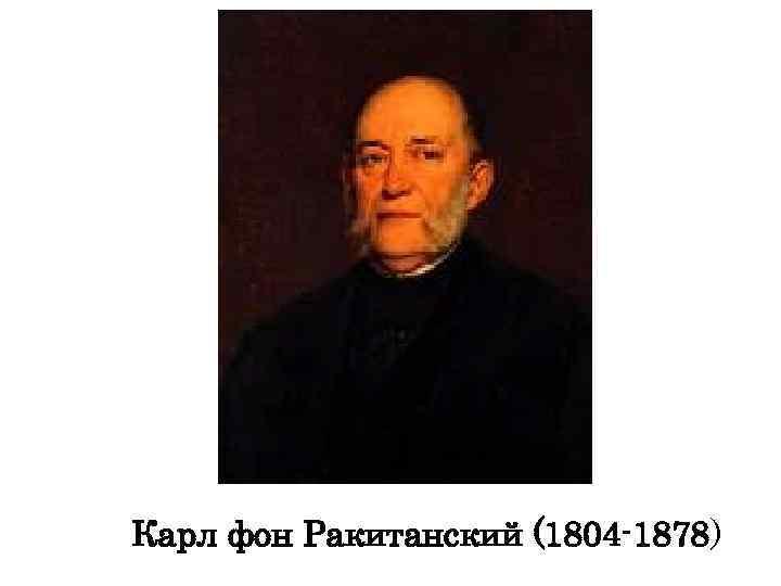 Карл фон Ракитанский (1804 -1878)