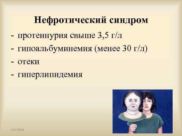 Нефротический синдром - протеинурия свыше 3, 5 г/л гипоальбуминемия (менее 30 г/л) отеки гиперлипидемия