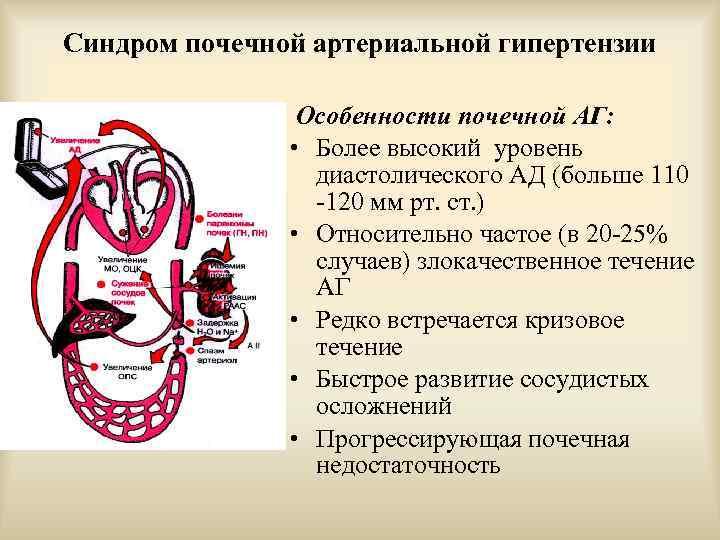 Синдром почечной артериальной гипертензии Особенности почечной АГ: • Более высокий уровень диастолического АД (больше