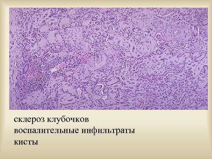склероз клубочков воспалительные инфильтраты кисты