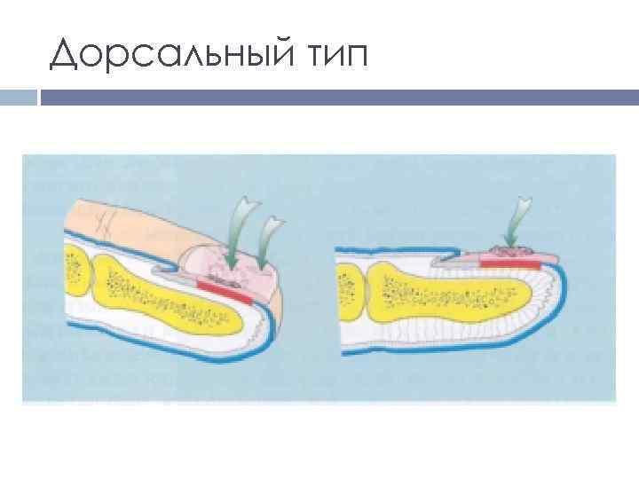 Дорсальный тип