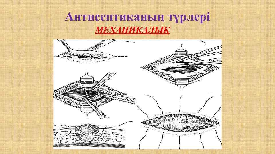 Антисептиканың түрлері МЕХАНИКАЛЫҚ