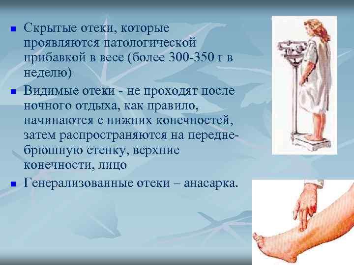 n n n Скрытые отеки, которые проявляются патологической прибавкой в весе (более 300 -350