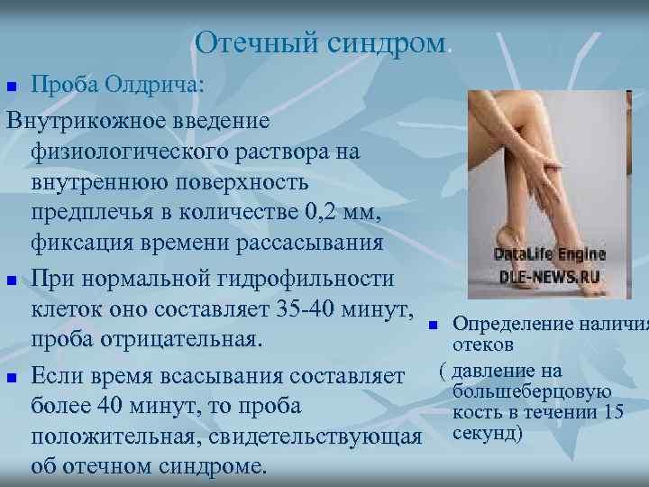Отечный синдром. Проба Олдрича: Внутрикожное введение физиологического раствора на внутреннюю поверхность предплечья в количестве
