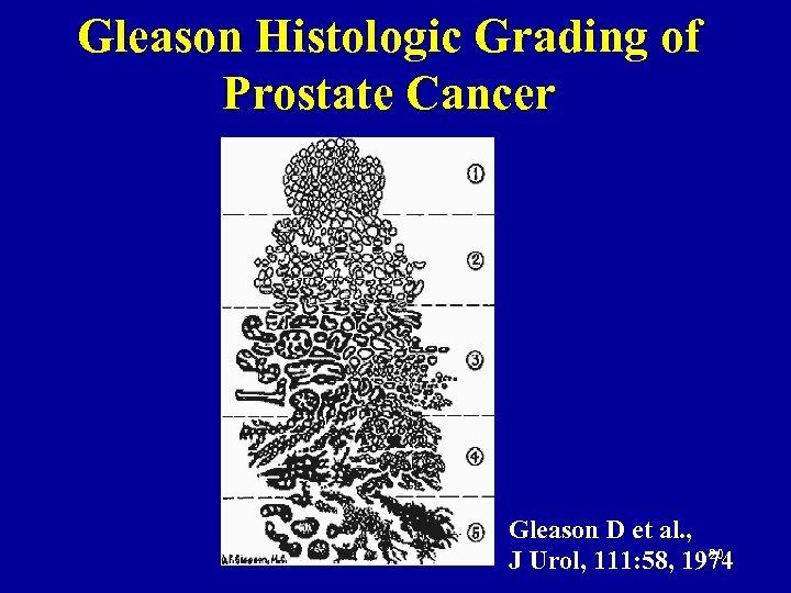 Gleason Histologic Grading of Prostate Cancer Gleason D et al. , 20 J Urol,