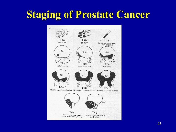 Staging of Prostate Cancer 22