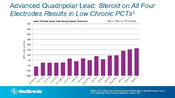 Advanced Quadripolar Lead: Steroid on All Four Electrodes Results in Low Chronic PCTs 1
