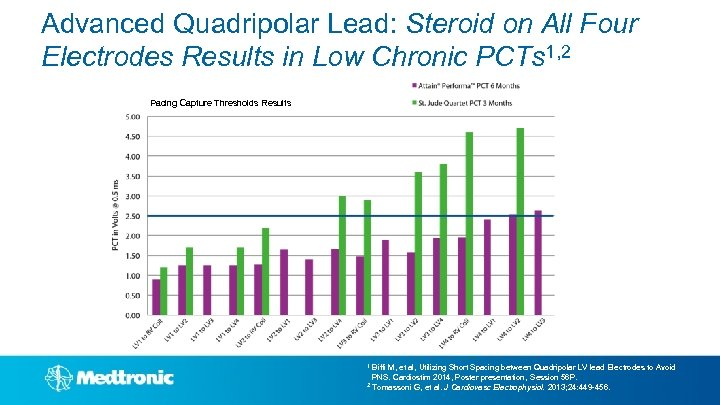 Advanced Quadripolar Lead: Steroid on All Four Electrodes Results in Low Chronic PCTs 1,