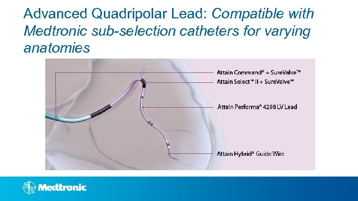 Advanced Quadripolar Lead: Compatible with Medtronic sub-selection catheters for varying anatomies
