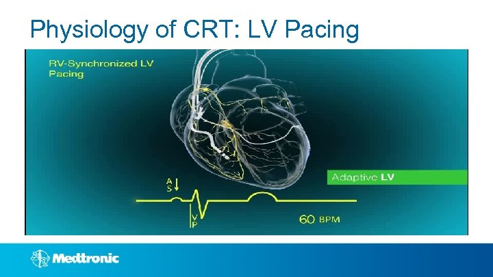 Physiology of CRT: LV Pacing