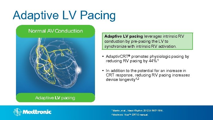 Adaptive LV Pacing Adaptive LV pacing leverages intrinsic RV conduction by pre-pacing the LV