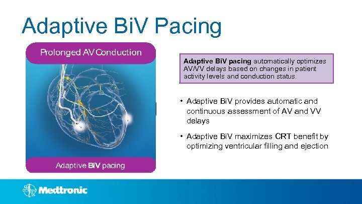 Adaptive Bi. V Pacing Adaptive Bi. V pacing automatically optimizes AV/VV delays based on