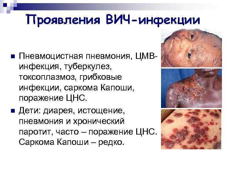 Проявления ВИЧ-инфекции n n Пневмоцистная пневмония, ЦМВинфекция, туберкулез, токсоплазмоз, грибковые инфекции, саркома Капоши, поражение