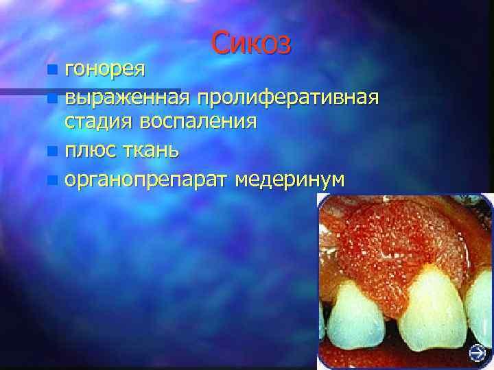 Сикоз гонорея n выраженная пролиферативная стадия воспаления n плюс ткань n органопрепарат медеринум n