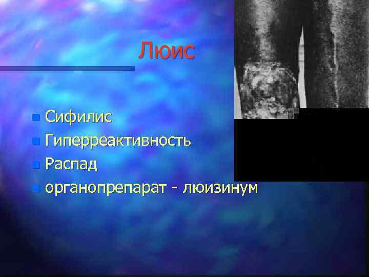 Люис Сифилис n Гиперреактивность n Распад n органопрепарат - люизинум n