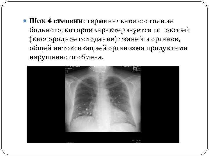 Шок 4 степени: терминальное состояние больного, которое характеризуется гипоксией (кислородное голодание) тканей и