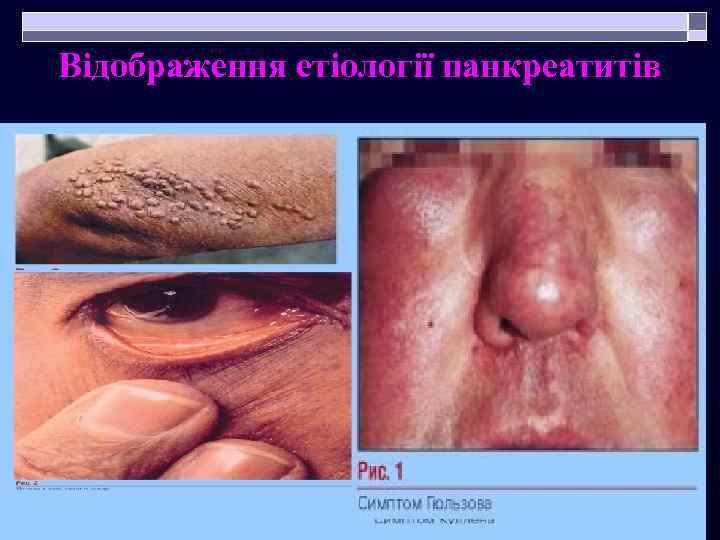 Відображення етіології панкреатитів