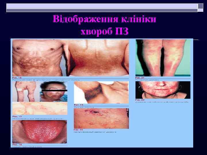 Відображення клініки хвороб ПЗ