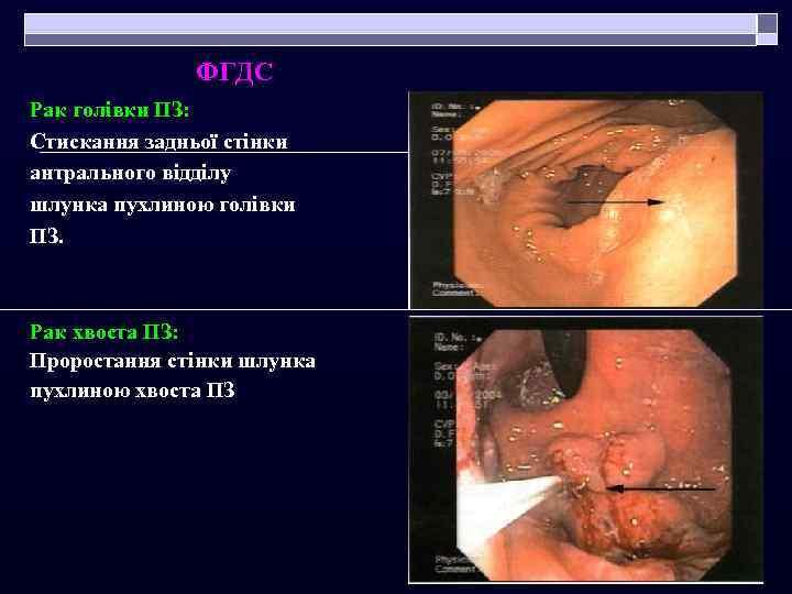 ФГДС Рак голівки ПЗ: Стискання задньої стінки антрального відділу шлунка пухлиною голівки ПЗ. Рак