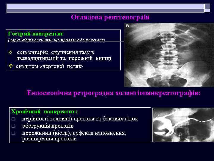 Оглядова рентгенограія Гострий панкреатит (парез відрізку кишки, що прилягає до pancreas) v сегментарне скупчення