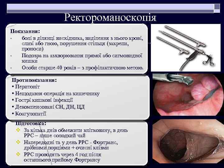 Ректороманоскопія Показання: • болі в ділянці висхідника, виділення з нього крові, слизі або гною,