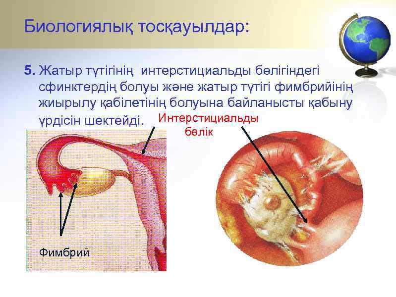 Биологиялық тосқауылдар: 5. Жатыр түтігінің интерстициальды бөлігіндегі сфинктердің болуы және жатыр түтігі фимбрийінің жиырылу