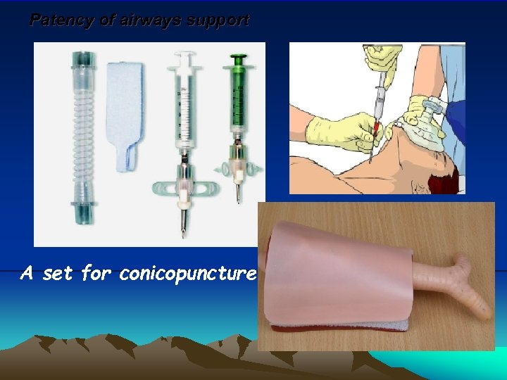 Patency of airways support A set for conicopuncture