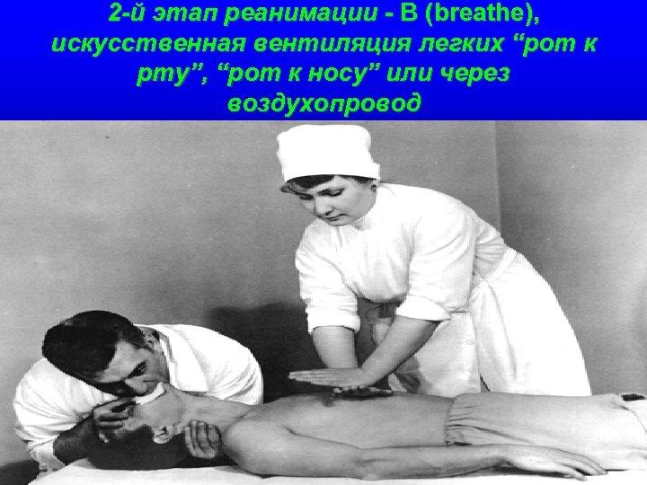 """2 -й этап реанимации - В (breathe), искусственная вентиляция легких """"рот к рту"""", """"рот"""