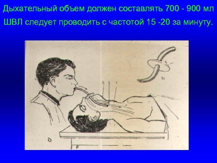 Дыхательный объем должен составлять 700 - 900 мл ШВЛ следует проводить с частотой 15
