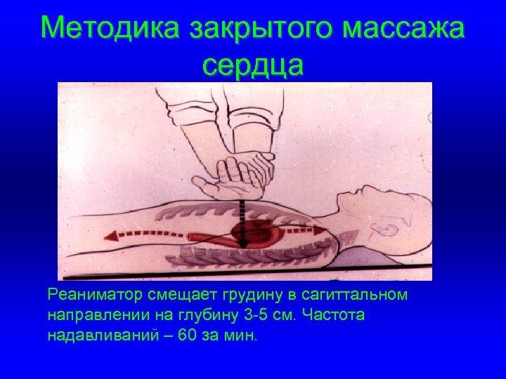 Методика закрытого массажа сердца Реаниматор смещает грудину в сагиттальном направлении на глубину 3 -5