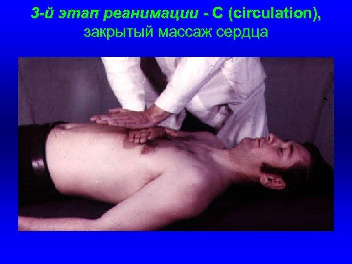 3 -й этап реанимации - С (circulation), закрытый массаж сердца