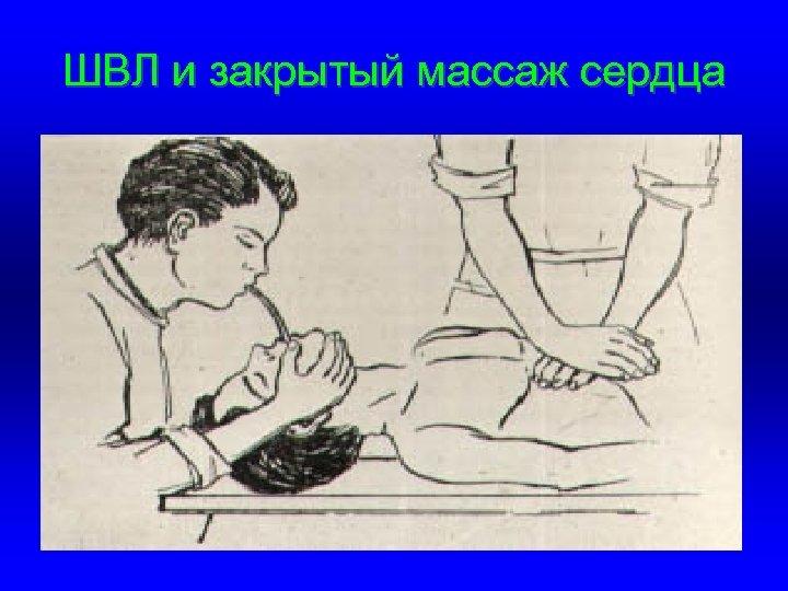 ШВЛ и закрытый массаж сердца