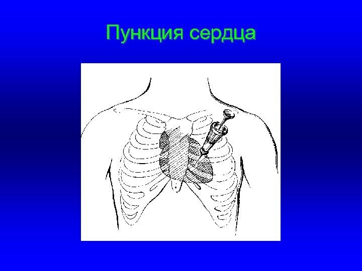 Пункция сердца