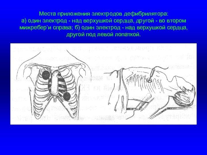 Места приложения электродов дефибрилятора: а) один электрод - над верхушкой сердца, другой - во