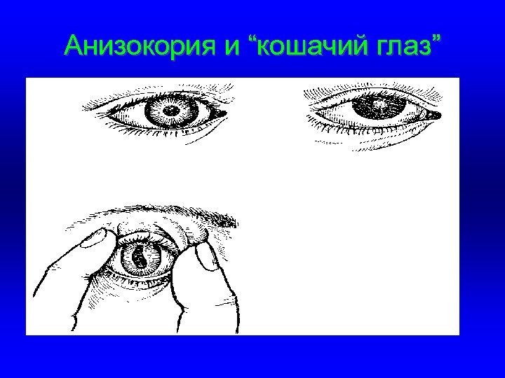 """Анизокория и """"кошачий глаз"""""""