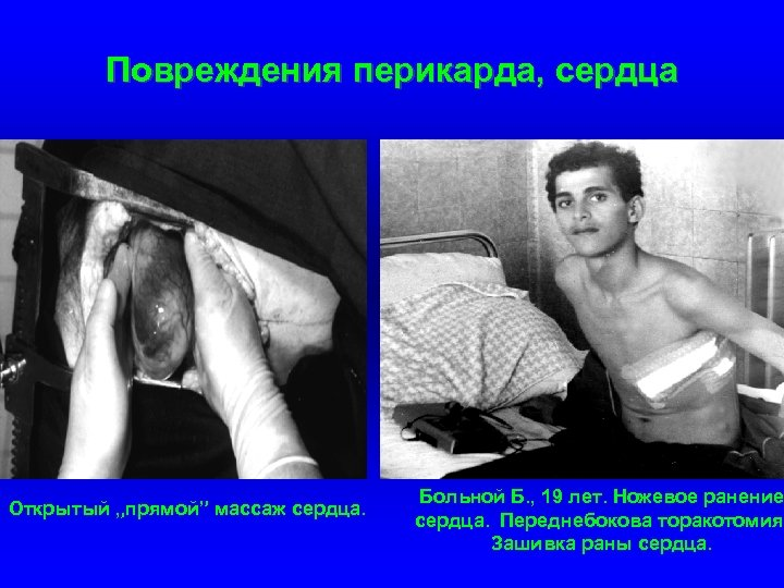 """Повреждения перикарда, сердца Открытый """"прямой"""" массаж сердца. Больной Б. , 19 лет. Ножевое ранение"""