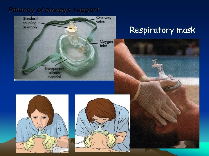 Patency of airways support Respiratory mask