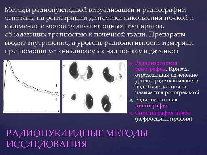 Методы радионуклидной визуализации и радиографии основаны на регистрации динамики накопления почкой и выделения с
